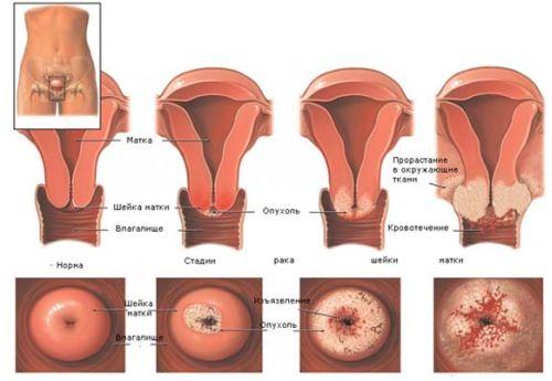 Prichiny-displazii-sheiki-matki-i-ee-diagnostika-2