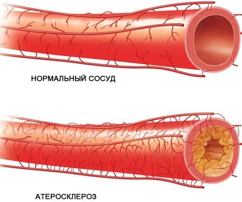 Prichiny-i-priznaki-ateroscleroza-v-molodom-vozraste-2