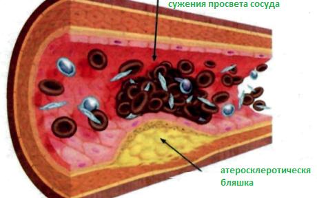Prichiny-i-priznaki-ateroscleroza-v-molodom-vozraste-3
