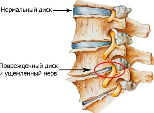 Osnovnye-prichiny-osteohondroza-u-zhenshchin-i-metodiki-lecheniia-zabolevaniia-2