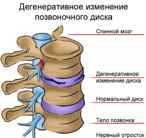 Osnovnye-prichiny-osteohondroza-u-zhenshchin-i-metodiki-lecheniia-zabolevaniia-6