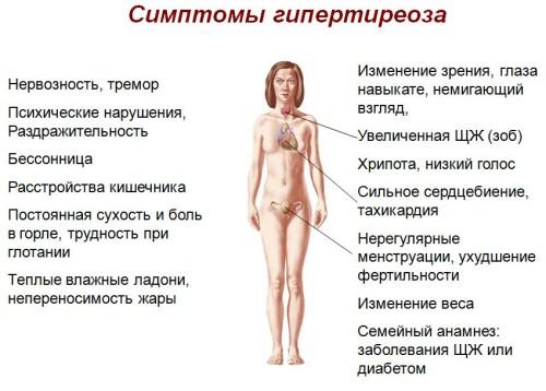 Simptomy-i-lechenie-gipertireoza-prichiny-i-posledstviia-zabolevaniia-2