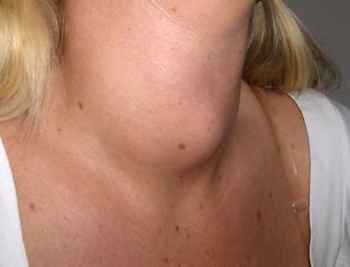 Simptomy-i-lechenie-gipertireoza-prichiny-i-posledstviia-zabolevaniia-3