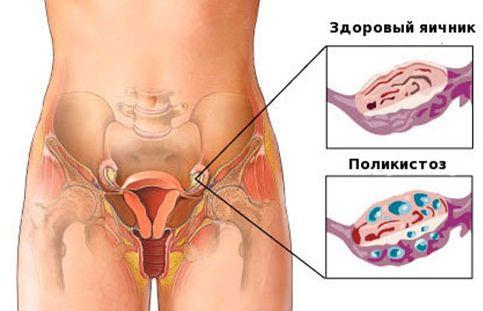 Как работают яичники у женщин - 18447