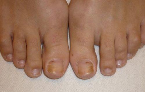 Лимон лечение грибка ногтей на ногах