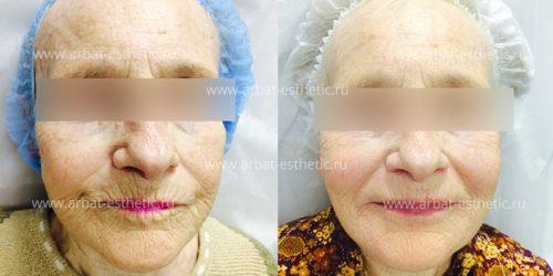 kosmetologiia-litca-11