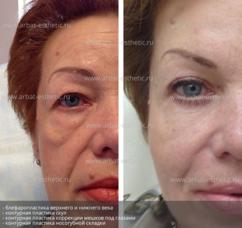 kosmetologiia-litca-9