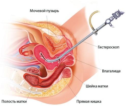 Эндометриоз: как определить илечить?