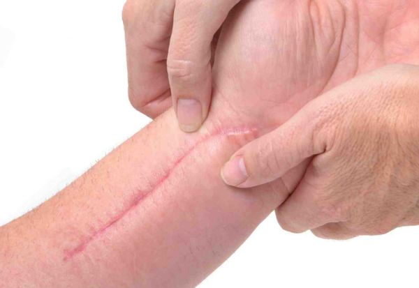 Народные средства от шрамов и рубцов
